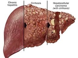 Cirrhosis of the liver case study